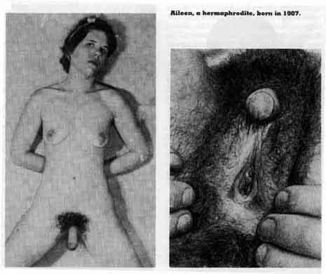 фото половых органов девушек гермафродитов